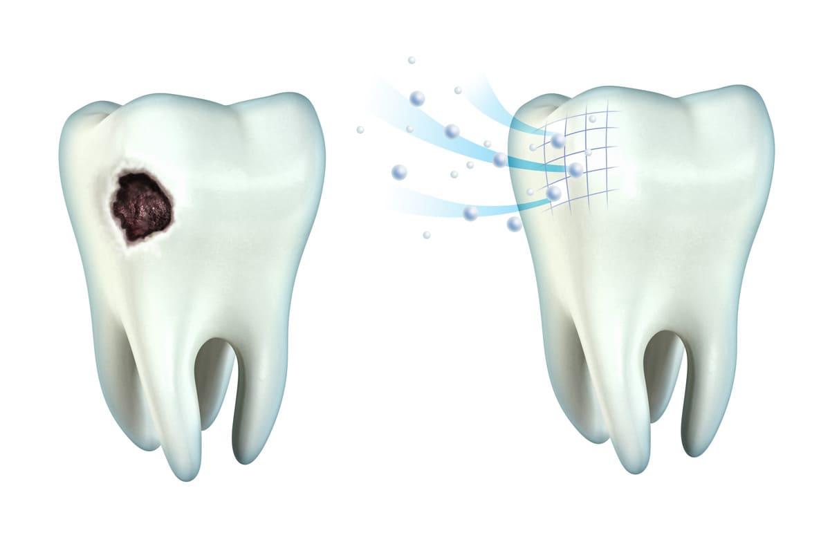 横浜市青葉区 うかい歯科医院 1.虫歯の予防効果